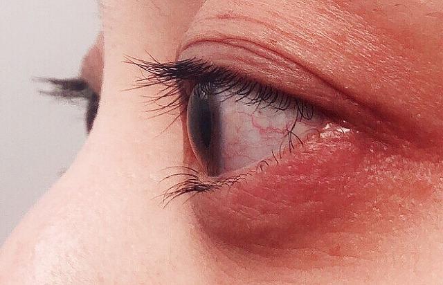 ウイルス性急性結膜炎